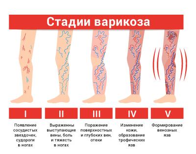 Варикоз начальная стадия симптомы
